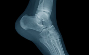 Ankle 6